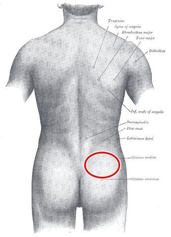 Der Schmerz im Rücken nach dem Klimmzug