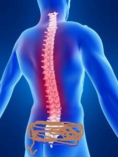 Rücken > Braun unterzeichnetes < dort tut es weh D:  - (Schmerzen, Rückenschmerzen)