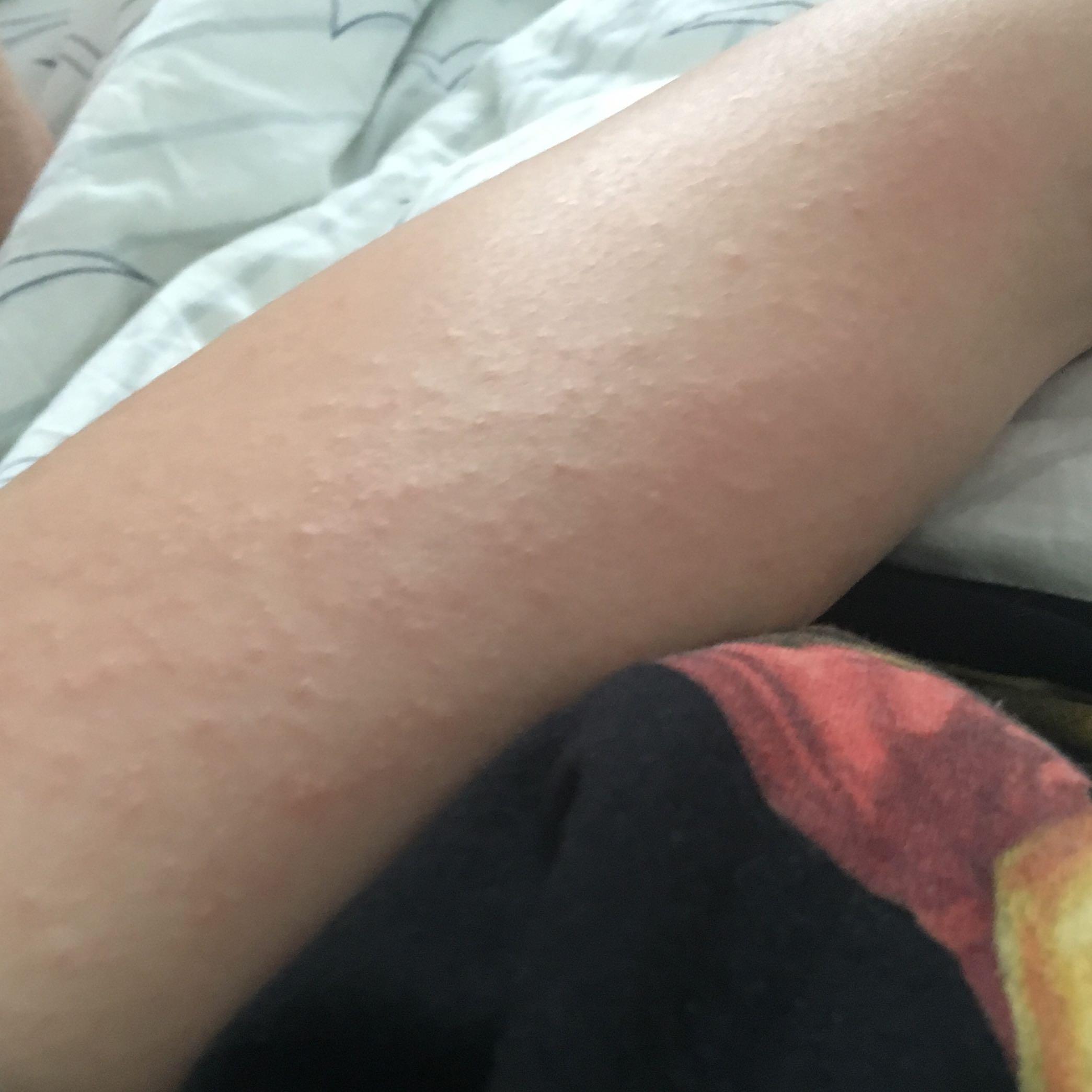 2 Wochen Krankschreiben Welche Krankheit