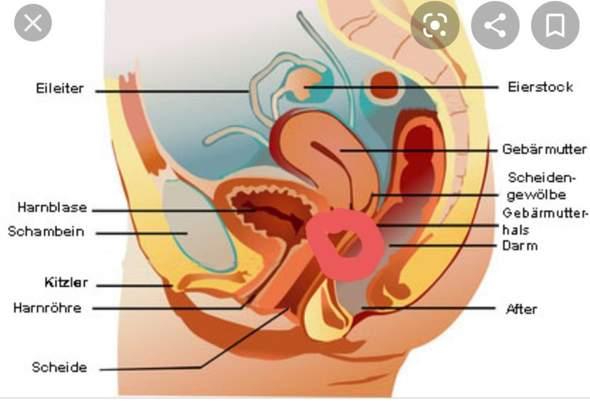 Am schambein knubbel Schmerzhafte Knoten
