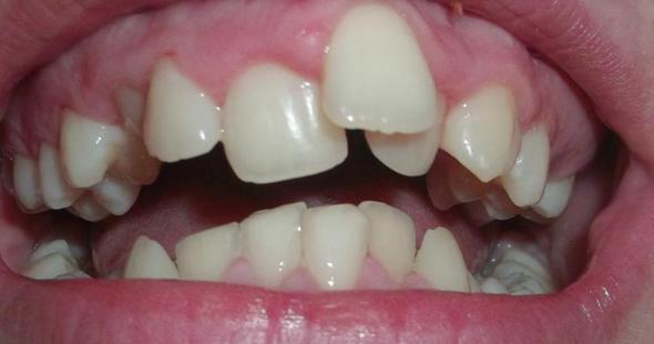 Schiefe Zähne richten lassen? (Behandlung)