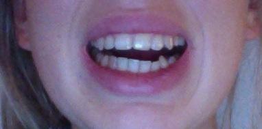 Zahnspange hässlich