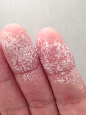 Schimmelreiniger hat Spuren auf Händen hinterlassen, die nicht abwaschbar sind- was nun tun?