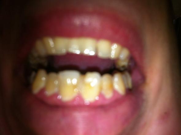 Unechte Zähne