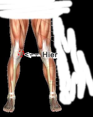 Schmerzen Knie Innenseite Ohne Schwellung