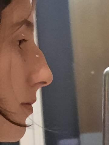Schlimme Nase?