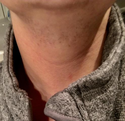 Ihr seht ich habe auch sehr starke Rötung vom rassieren (vor 2 Tagen rasiert)  - (rasieren, Hals, Bart)