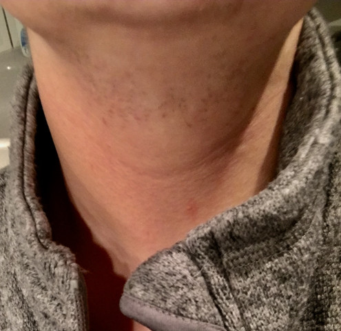 Oder bart hals nicht rasieren Wie Vollbart