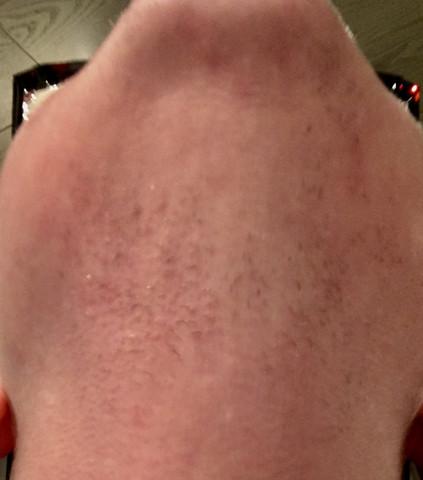 Es sieht ecklich und ungepflegt aus - (rasieren, Hals, Bart)