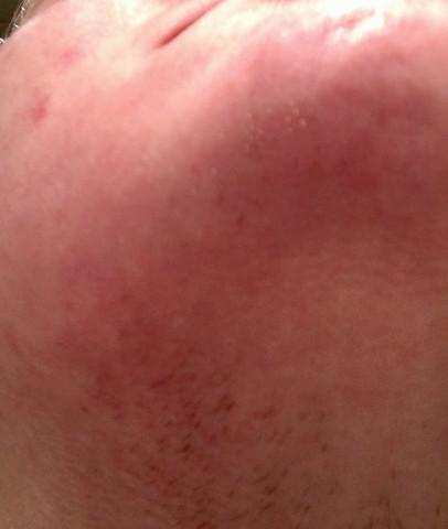 Rot und stoppelig - (rasieren, Hals, Bart)