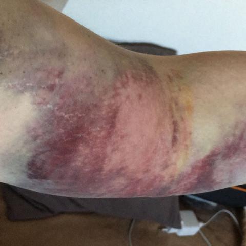 Der gesamte Arm - (Entzündung, Hämatom)