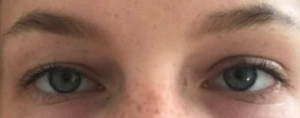Tun unterschiedlich was große augen Pupillen unterschiedlich