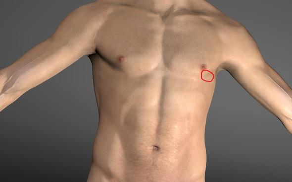 Schmerz In Der Linken Brust Wenn Man Auf Eine Bestimmte Stelle