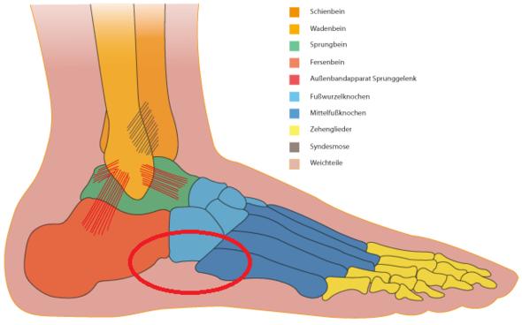 Schmerz Punkt Radius - (Schmerzen, Füße, Fußgelenk)