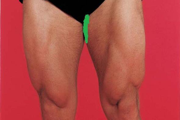 Schmerzen Am Oberen Inneren Oberschenkel Beine Anatomie