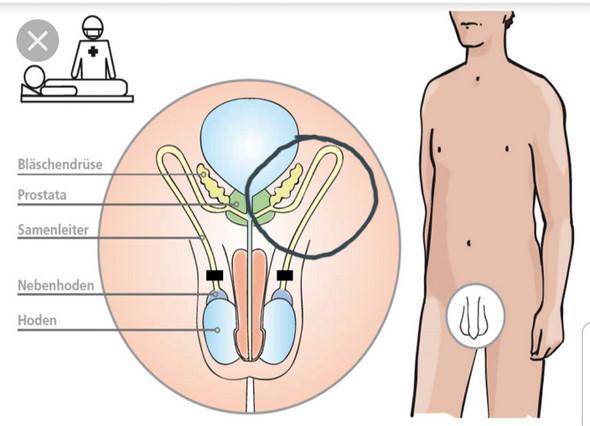 Linken schmerzen hoden im Hodenschmerzen: Ursachen