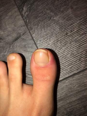 Zeh am entzündetes nagelbett Nagelbettentzündung: Was