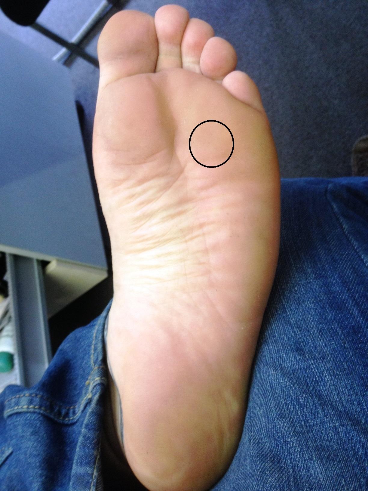 Schmerzen an meinem linken Fuss (Füße, barfuß, Sohle)