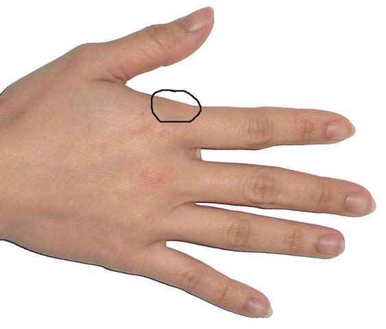 Schmerzen der Handflächen nach Überbelastung (Hand..