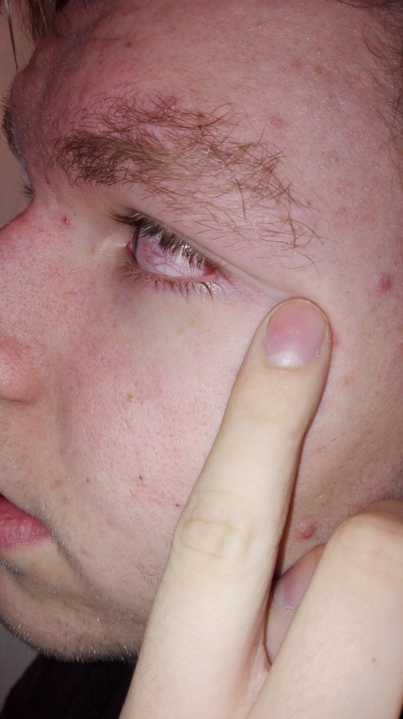 Schmerzen im Auge und geplatzte Ader, grund zur Sorge..