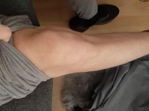 Schmerzen im Knie was tun?