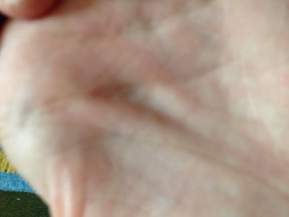 hand - (Gesundheit, Schmerzen, Hand)