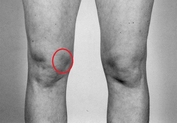 Schmerzen Innenseite Knie