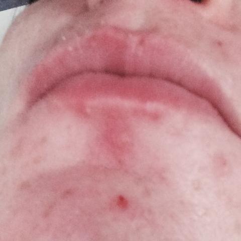 Das ist die Lippe von meiner Tochter was kann das sein es tut ihr da weh  - (Schmerzen, unterlippe, SuSE)
