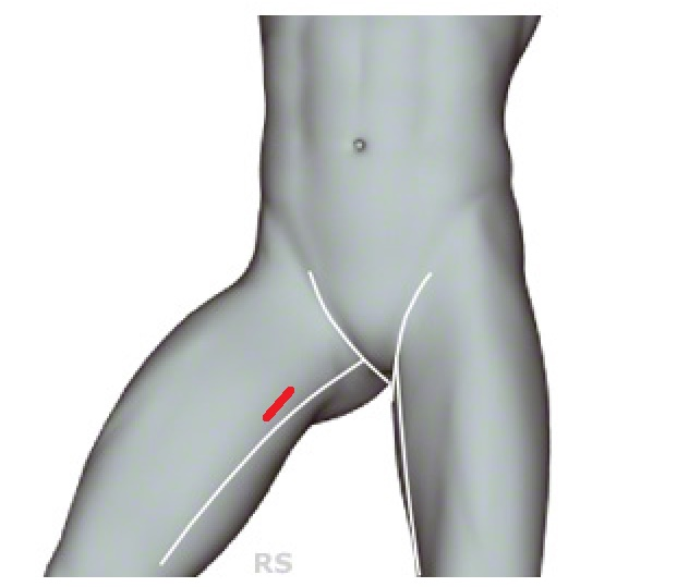 Wie oft sein es kann die Massage des Rückens bei der Osteochondrose
