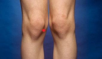 Schmerzen Nach Cortisonspritze Ins Knie