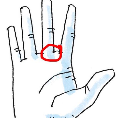 Am finger knubbel Heberden