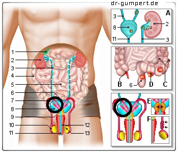 Muskelkater Unterleib