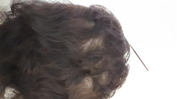 - (Haare, Haarausfall, Mangel)