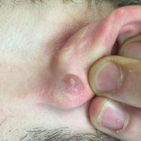 Rechtes Ohr, linkes Ohr ist frei.  - (Arzt, Haut, Blut)