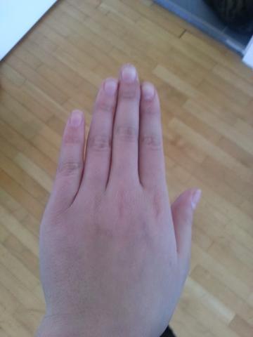Unverletzte Hand - (Medizin, Körper, Kochen)