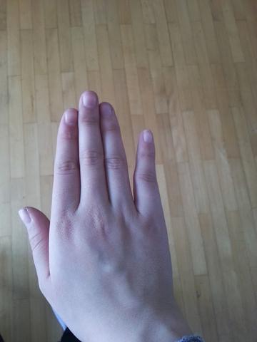 Hier mein verletzter, kleiner Finger - (Medizin, Körper, Kochen)