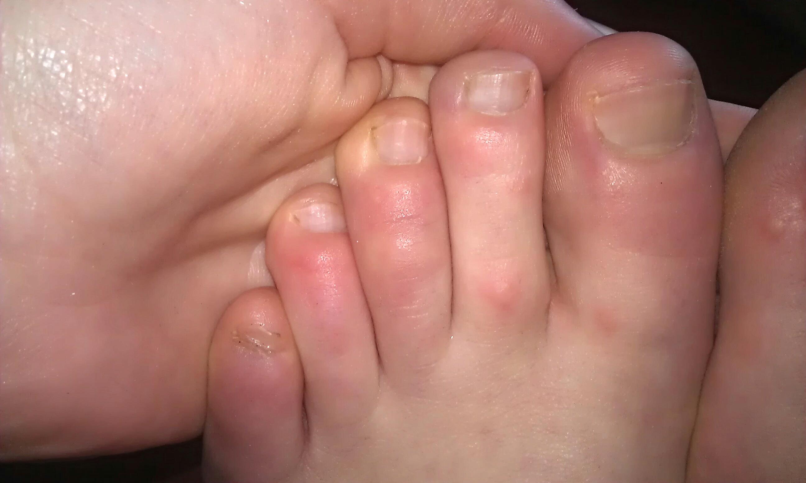 Geschwollene Beine und Füße – Ursachen: Lympherkrankungen