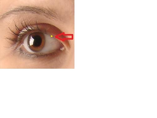 Schmerzhafter Eitriger Gerstenkorn An Meinem Oberen Augenlid