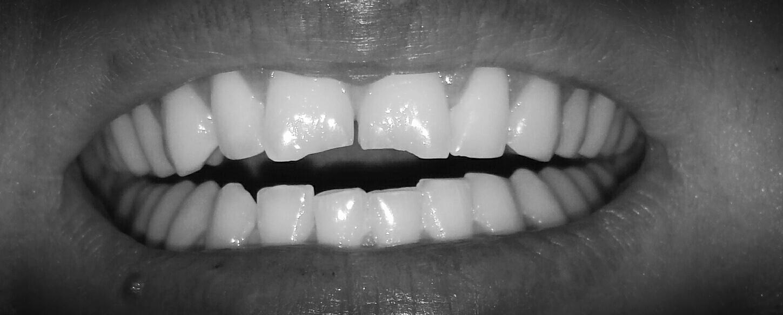 kleines stück vom zahn abgebrochen