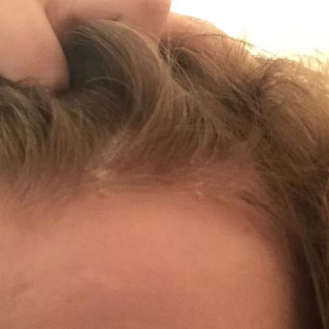 Kopfhaut - (Shampoo, trocken, Schuppen)