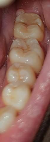 Schwarze Punkte und braune Stellen auf den Zähnen