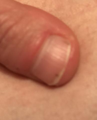 Schwarze Striche Daumen Nagel Gesundheit Und Medizin Nägel