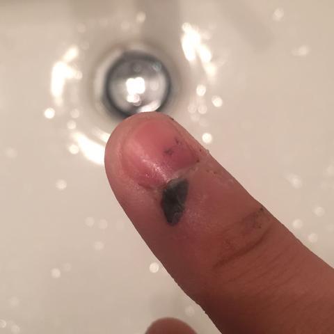 schwarzer fleck an meinem finger schwarzer fleck. Black Bedroom Furniture Sets. Home Design Ideas
