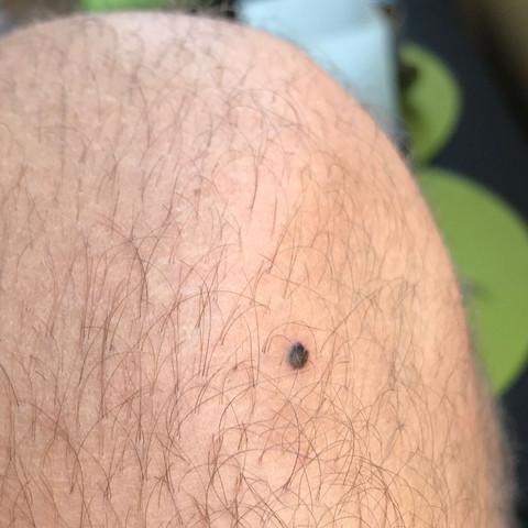 Dem auf schwarze penis flecken Schwarzer Fleck