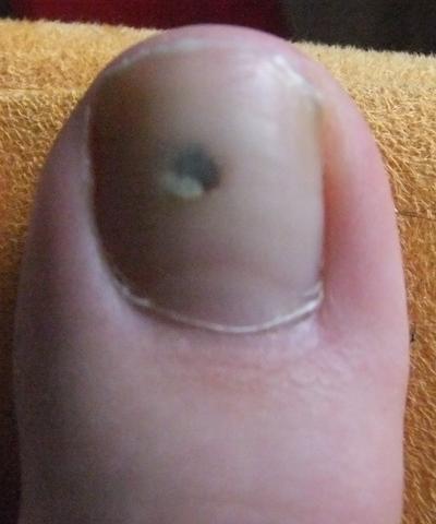 Schwarzer fleck unterm zehennagel