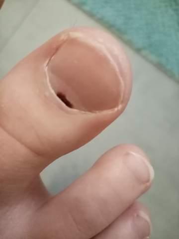 Unterm zehennagel fleck dunkler Nagelverfärbungen: Blauer