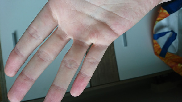 Punkt  - (Medizin, Gesundheit und Medizin, Haut)