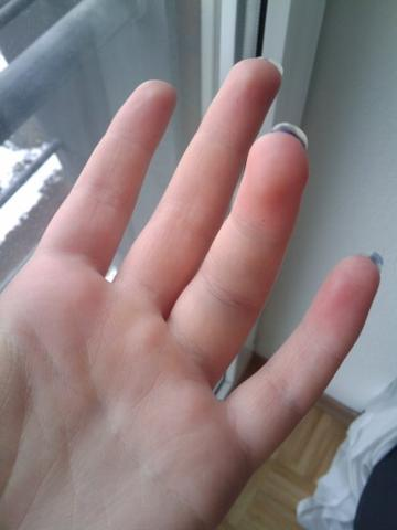 Ringfinger dauer kapselriss Kapselriss Ringfinger