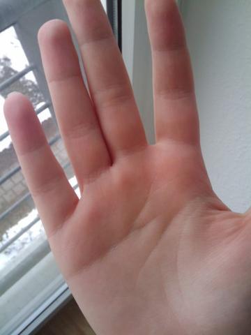 Zum Vergleich die andere Hand... - (Gesundheit, Arzt, Schmerzen)