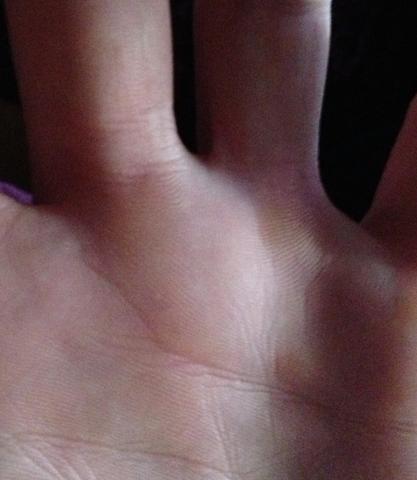 Schwellung - (Schmerzen, Wasser, Hand)